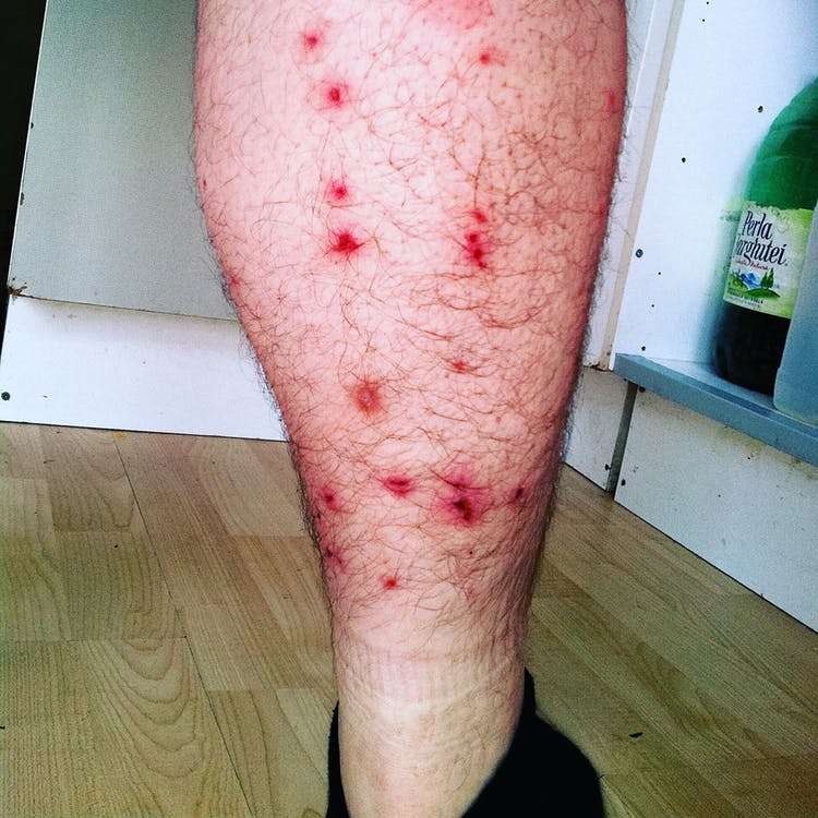 Bed bug bites on leg